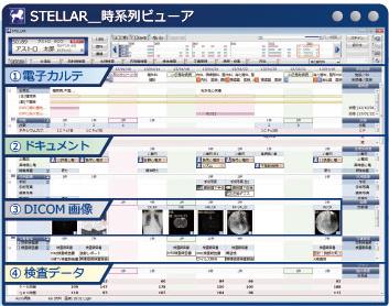 診療情報統合システム STELLAR(アストロステージ)